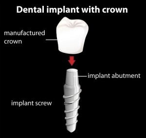 Implant-Breakdown