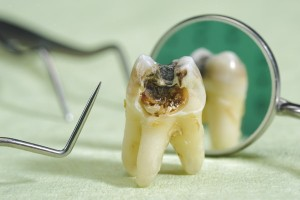 Tooth decay corrupts a tooth.