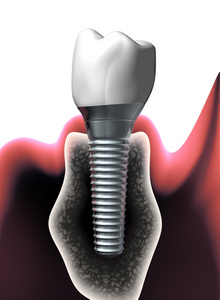 integrated dental implant