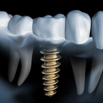 Zahnimplantat 4